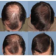 """Brasilialainen neitsyt hiukset miesten hiuslisäkkeet hiuslisäke 6 """"hieno mono Remy hiuksista 8"""" x6 """"hiuslisäke replanement"""